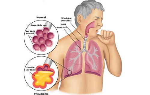 Penyakit Tuberkulosis Pengertian Penyakit Tuberkulosis (TBC) dan Vaksin Bacille Calmette Guerin