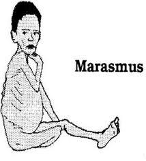 Marasmus  Penyebab Penyakit Maramus