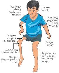 Lumpuh Layuh Mendadak (Acute Flaccid Paralysis )